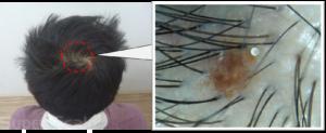 AGA特徴的な頭皮画像2