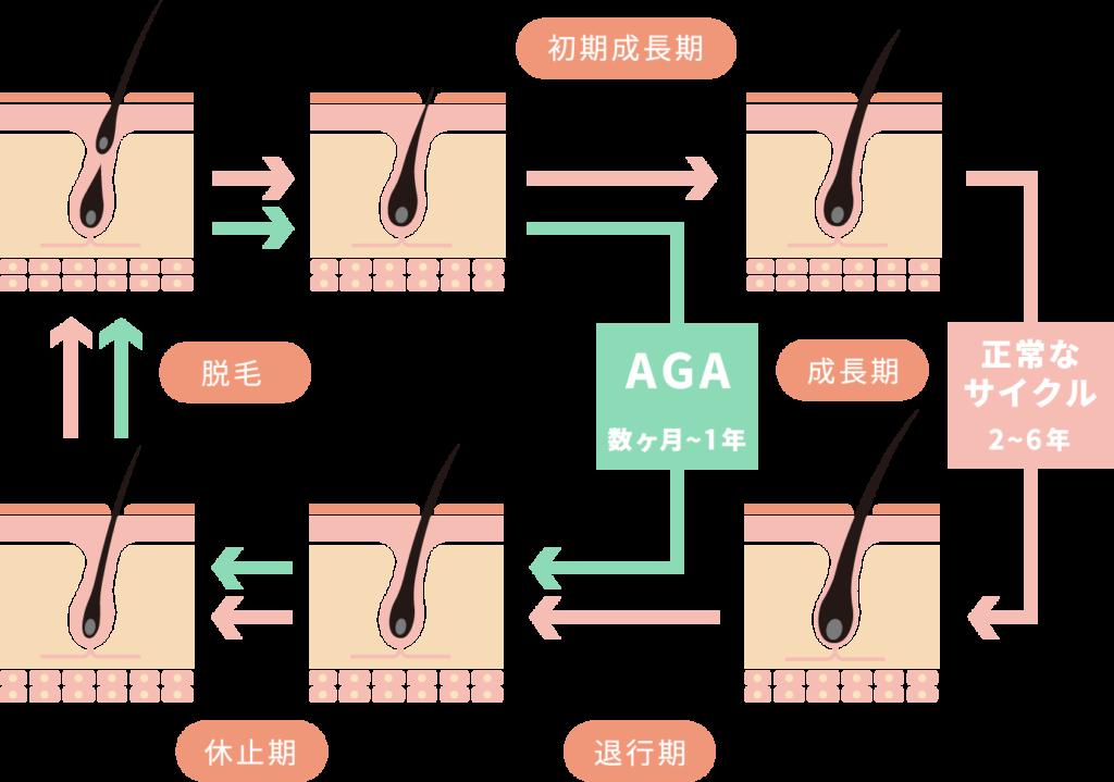AGAサイクルの特徴