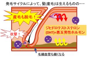 AGA特徴原因解説図3
