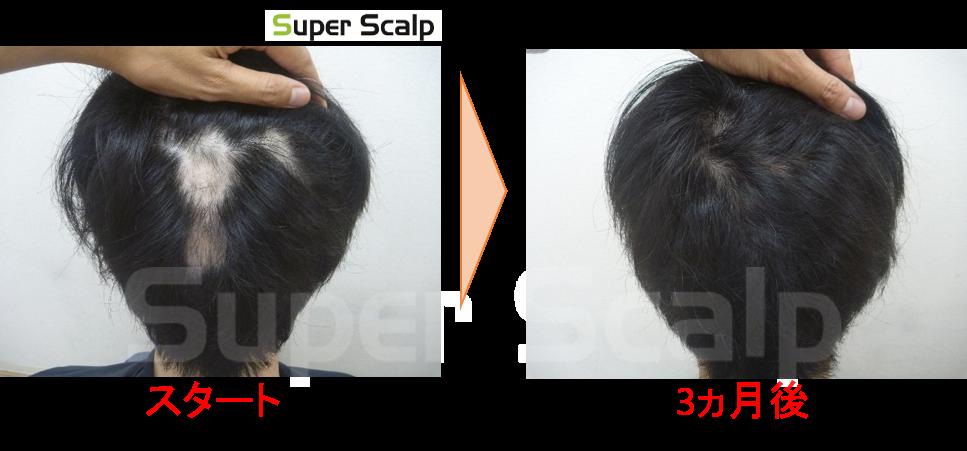 効果無い!スーパースカルプ発毛センター円形脱毛症症例