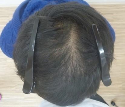 男性発毛症例20代 2