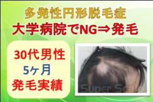 大学病院NGの多発性円形脱毛