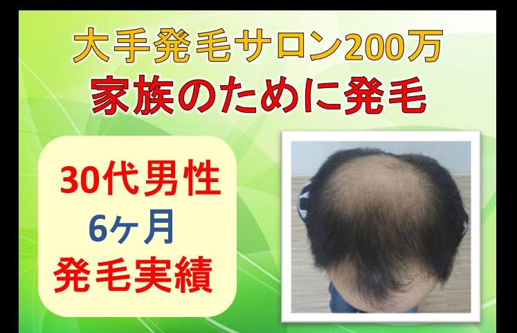 30代大手発毛サロン