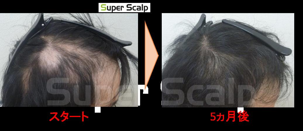 円杭発毛 症例30代男性 6