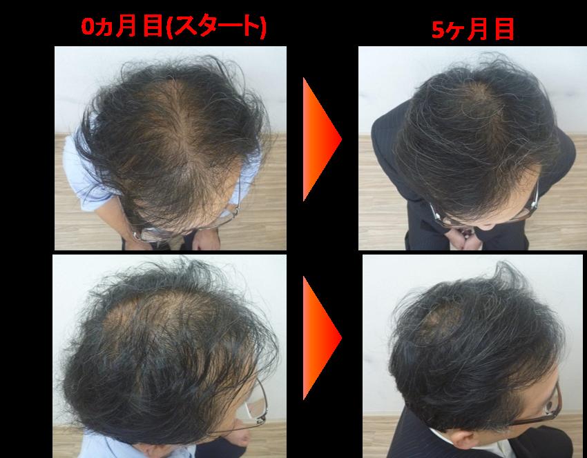 40代男性発毛