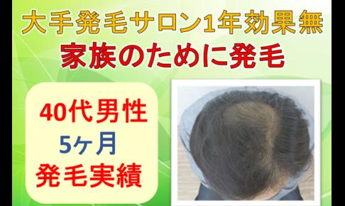 大手発毛サロン効果無し40代男性