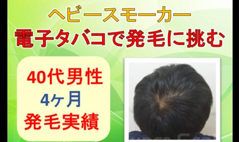 40代男性の発毛