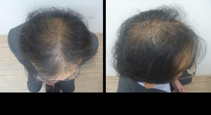 40代男性薄毛の発毛1ヵ月目