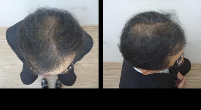 40代男性発毛3ヵ月目