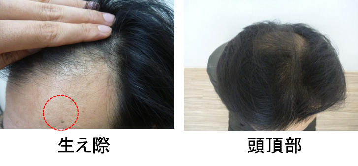 40代薄毛の発毛1ヵ月