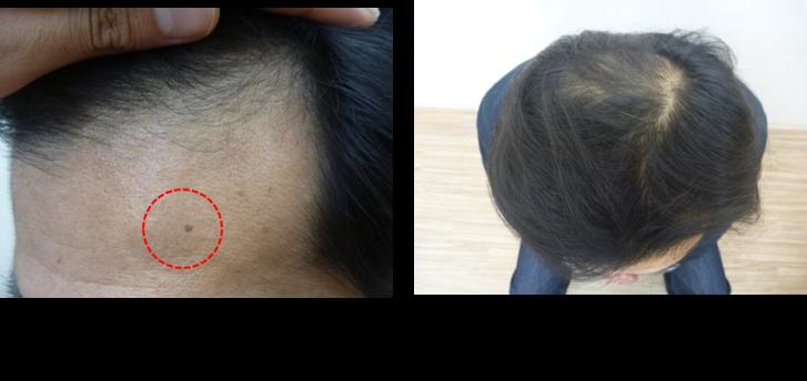 40代薄毛の発毛スタート2ヵ月