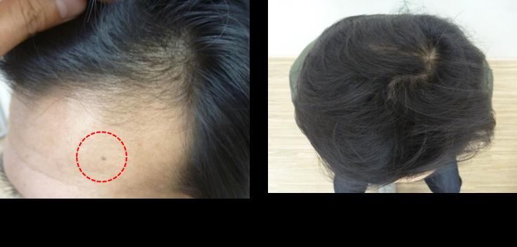 40代薄毛の発毛4ヵ月