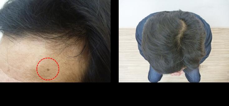 40代薄毛の発毛6ヵ月