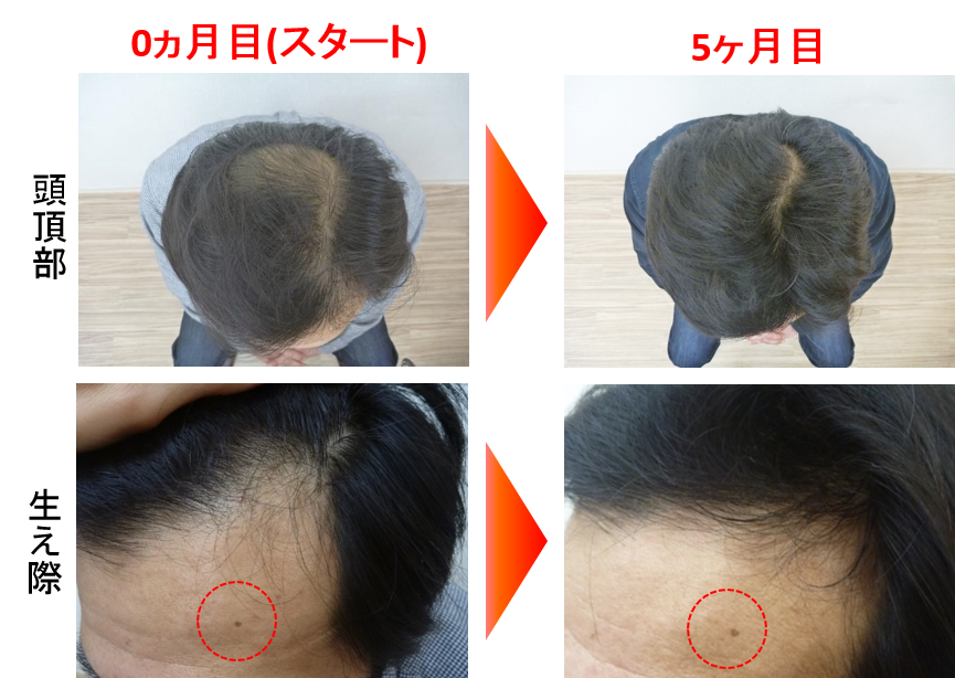 40代薄毛の発毛