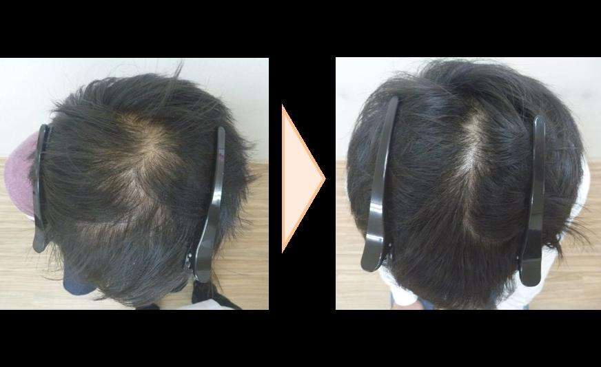 男性発毛症例20代 5