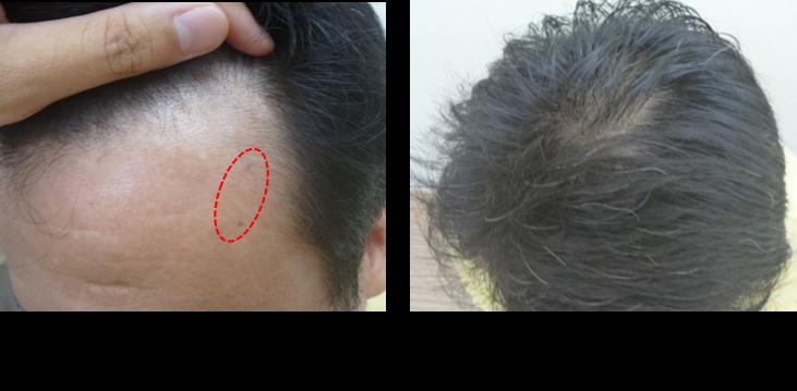 50代薄毛1ヵ月