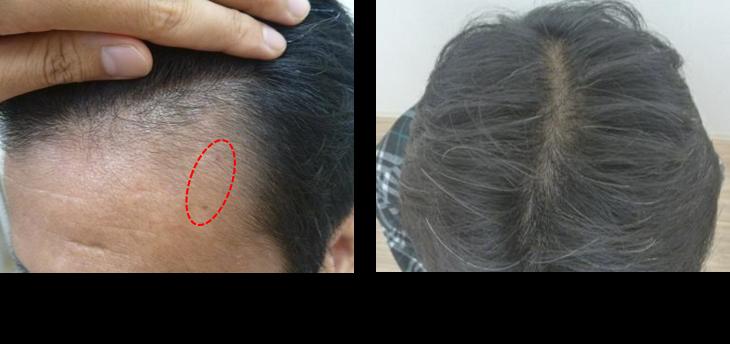 50代薄毛3ヵ月