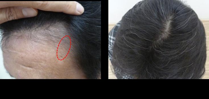 50代薄毛4ヵ月