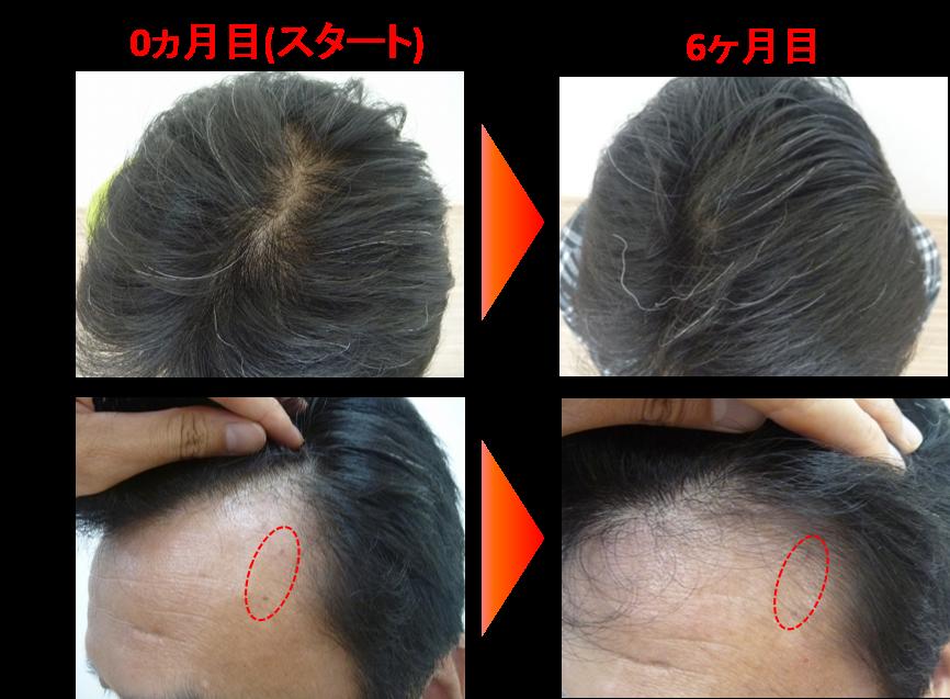 50代薄毛