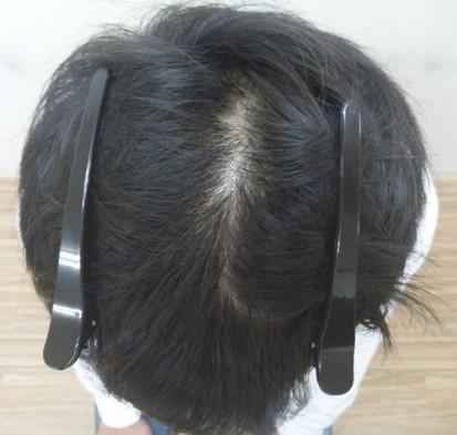 男性発毛症例20代 4