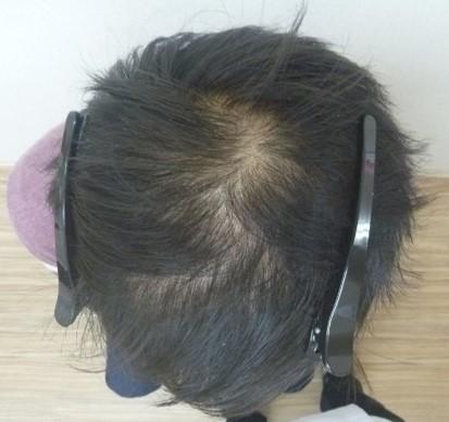 男性発毛症例20代 1