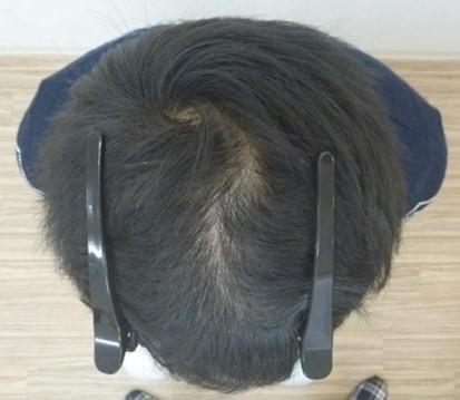 男性発毛症例20代 3