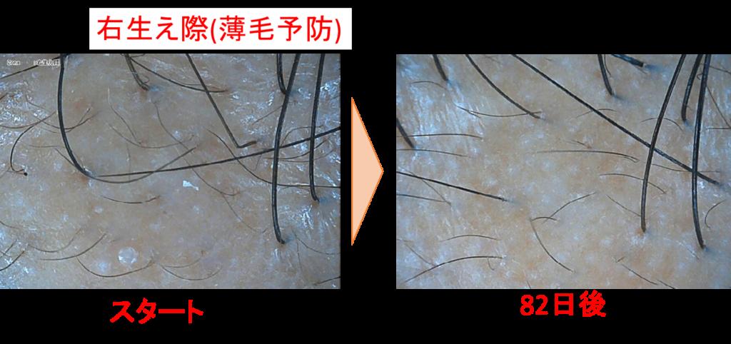 生え際の発毛