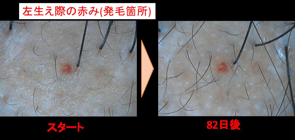 左生え際の発毛