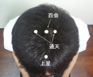 頭頂部育毛ツボ