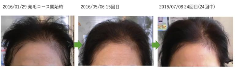 埼玉の薄毛