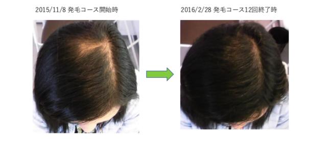 埼玉の薄毛3