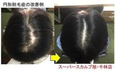大阪で円形脱毛女性