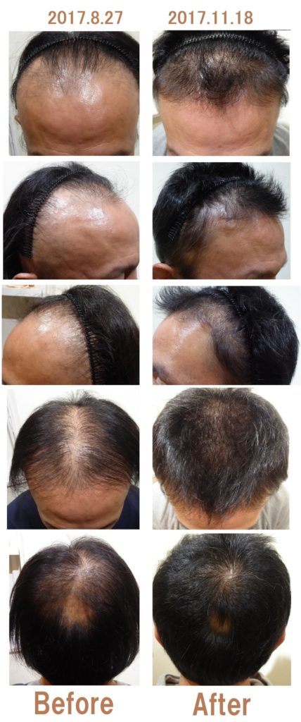 40代男性の薄毛
