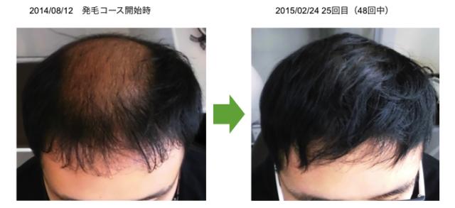 埼玉の薄毛20代