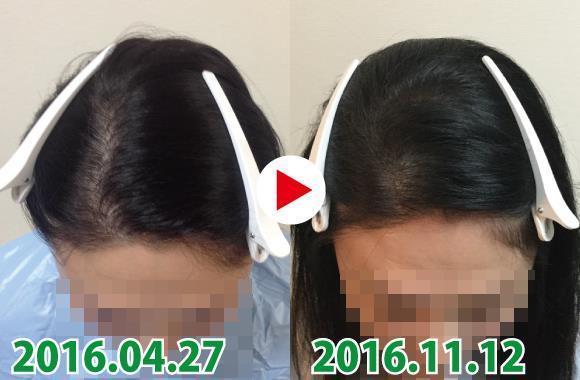 神奈川の薄毛50代女性