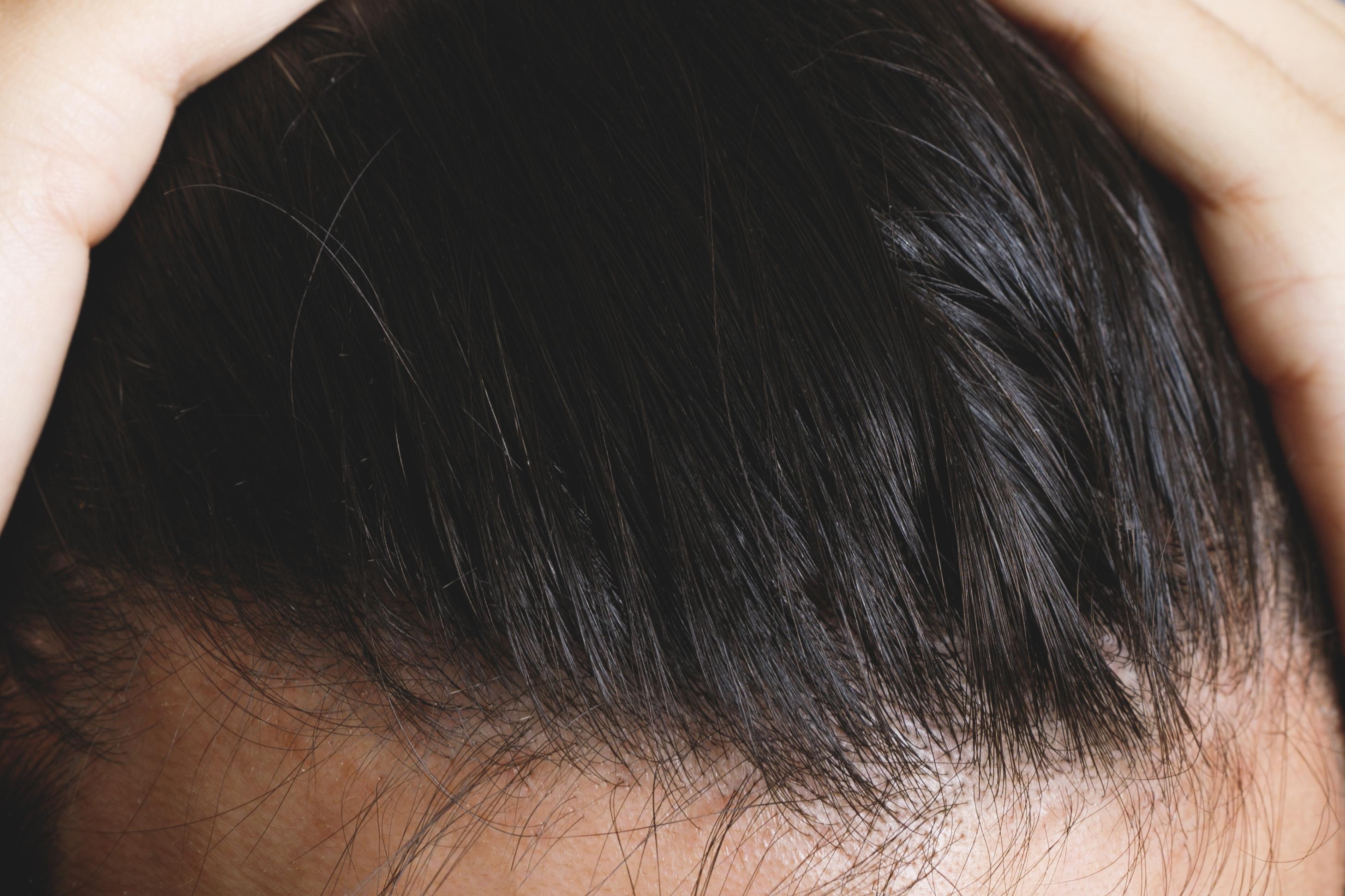 ハゲる人の髪質からハゲない髪質へ