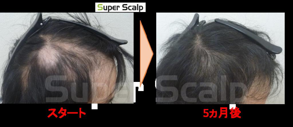 円形脱毛の改善
