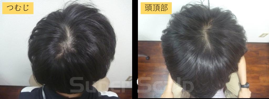 10代男性発毛スタート