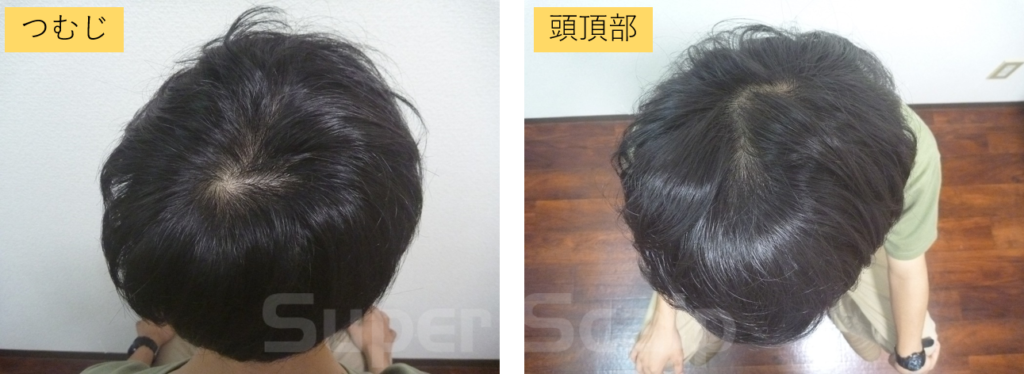 10代男性発毛1ヶ月