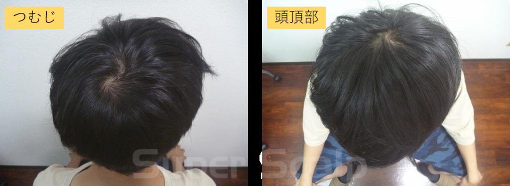 10代男性発毛2ヶ月