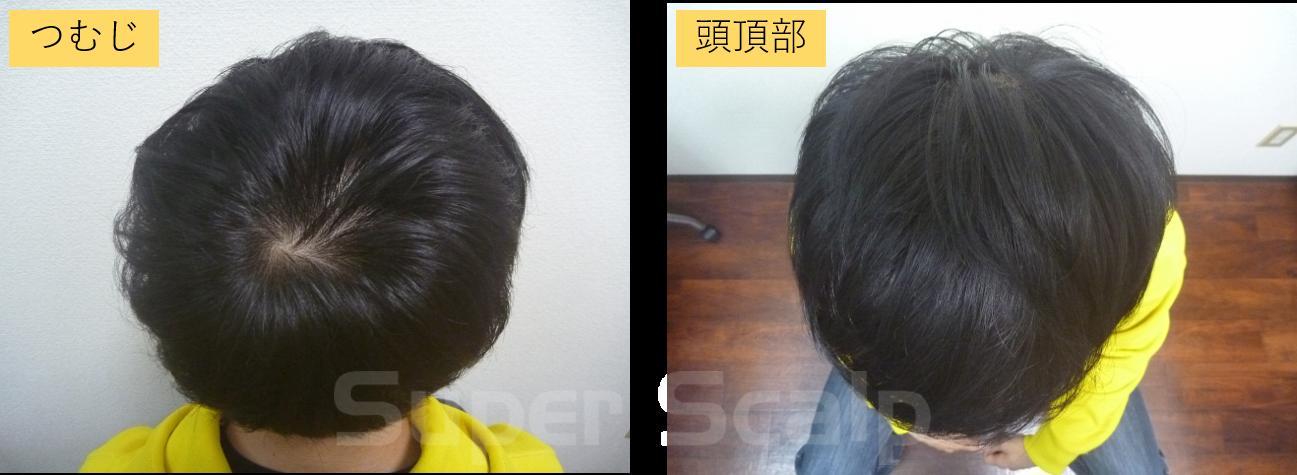 10代男性発毛5ヶ月