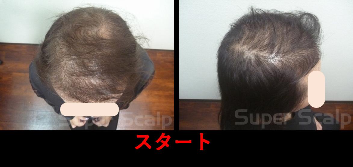 発毛実績50代女性発毛スタート