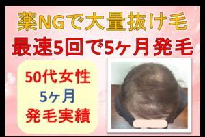 50代女性発毛