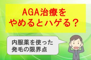 AGA治療をやめるとハゲる