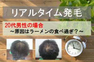 20代男性リアルタイム発毛
