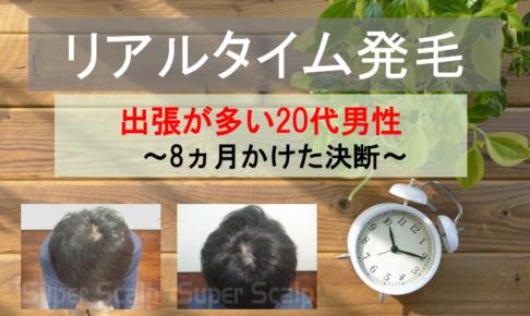 20代男性の発毛