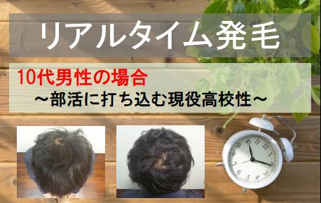 【発毛実績】10代男性