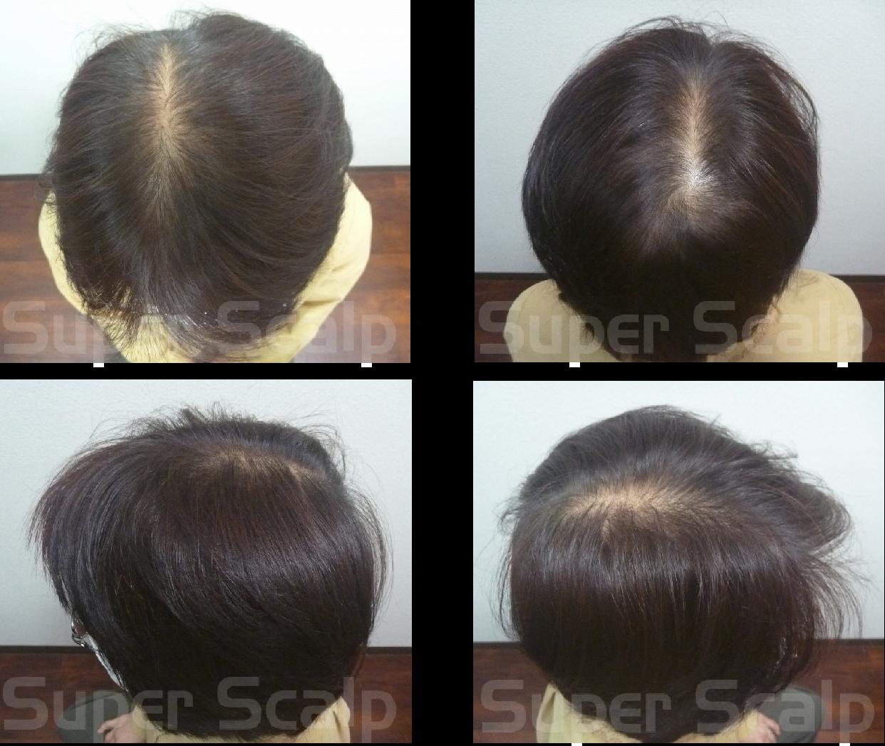50代女性発毛実績1ヵ月