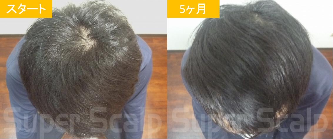 20代男性の発毛症例6