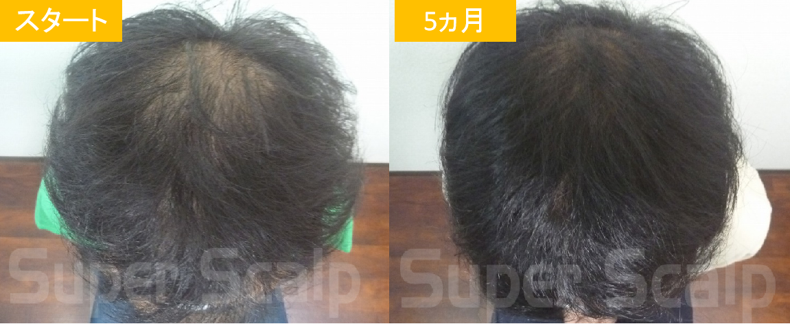 20代男性の発毛症例7